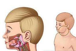 小儿腮腺炎的治疗措施
